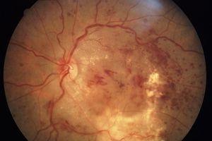 Cảnh báo nguy cơ mù do biến chứng đái tháo đường