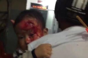 Người nhà bế con trai máu me đi tìm bác sĩ ở Đắk Lắk: Khiển trách kíp trực