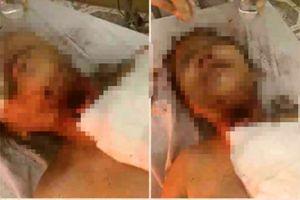 Xót xa hoàn cảnh bé gái bị thiếu niên 13 tuổi cưỡng hiếp, cứa cổ ở giữa cánh đồng