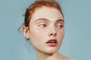 Liệu trình 5 bước chăm sóc da nhạy cảm mà phái nữ nên biết