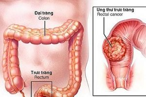 Tầm soát ung thư đại trực tràng miễn phí cho người dân trên địa bàn Hà Nội