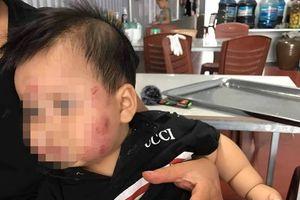 Phụ huynh tố trẻ 11 tháng tuổi bị cắn khắp mặt