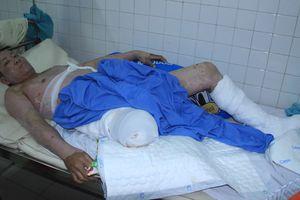 Xin giúp đỡ ngư dân bị cưa chân trong vụ nổ tàu cá ở đảo Lý Sơn