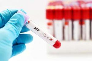 Xét nghiệm AFP phát hiện sớm ung thư gan