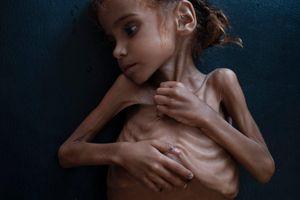 Bé gái gây chấn động thế giới về nạn đói ở Yemen đã chết