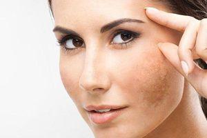 Bỏ túi ngay 4 công thức trị nám da mặt vào mùa đông
