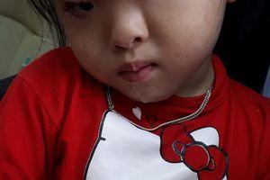 Cô bé 3 tuổi bị dị tật mắt vẫn cần sự giúp đỡ của cộng đồng để tìm ánh sáng
