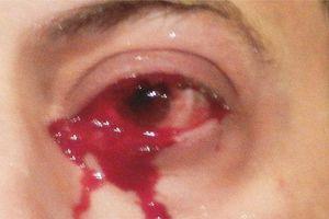 Bác sĩ choáng váng vì cấp cứu cho người đàn ông 'khóc ra máu' liên tục