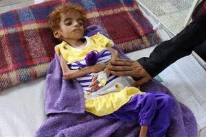 Yemen đã thành 'Địa ngục trần gian' với trẻ em
