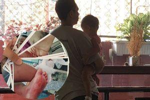 Gia đình bức xúc vì bé gái 2 tuổi nghi bị nhúng chân vào nước sôi tại trường mầm non ở Sài Gòn