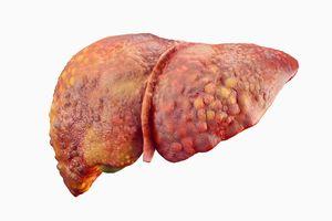 Thủ phạm gây ung thư gan dễ lây lan cho người thân