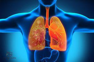Tổng quan về nguyên nhân, triệu chứng bệnh viêm phổi và cách điều trị dứt điểm