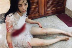 Hé lộ 'Quỳnh búp bê' bị đâm bê bết máu, khiến nhiều fan lo lắng