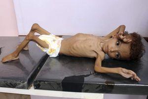 Năm triệu trẻ em ở Yemen có nguy cơ đối diện nạn đói