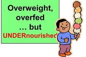 Cảnh báo trẻ em béo phì vẫn suy dinh dưỡng