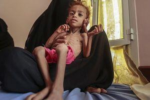 Đau xót người mẹ bất lực nhìn con gái 7 tuổi suy dinh dưỡng đến chết