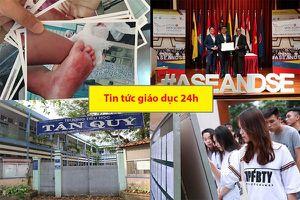 Tin tức giáo dục 24h: Nghi vấn bé gái bị bạo hành bằng nước sôi tại trường mầm non