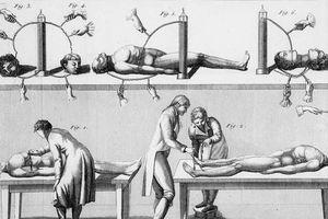 Rợn người thí nghiệm hồi sinh xác chết chấn động lịch sử