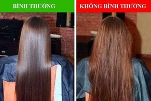 Những bất thường ở mái tóc cảnh báo sức khỏe có vấn đề