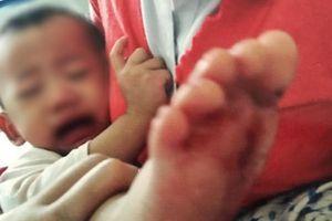 Tạm đình chỉ hoạt động 1 tháng trường mầm non ở Sài Gòn để xảy ra sự việc bé gái 2 tuổi bị bỏng nước sôi