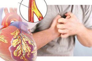 Bệnh tim mạch đang gây gánh nặng tử vong lớn nhất ở Việt Nam