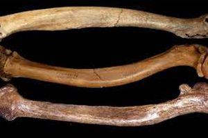 Giao phối cận huyết khiến xương của người cổ đại có nhiều dị tật