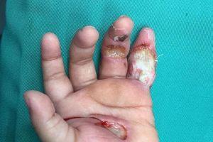 Để tay vào ổ điện, bé 13 tháng tuổi bỏng cháy bàn tay