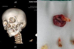 Cháu bé đau răng đi khám, gia đình tá hỏa khi con bị u nang xương hàm