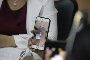 Tiêm chất làm đầy mũi, nữ sinh viên ở Sài Gòn đau đớn vì bị nhiễm trùng hoại tử