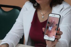 Tiêm filler tại cơ sở chui, nữ sinh viên bị hoại tử mũi