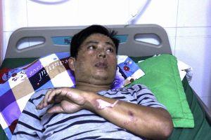 Cà Mau: Cứu sống thợ hàn bị ngưng tim do điện giật