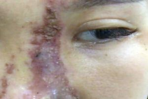 Nữ sinh 19 tuổi bị nát mũi sau khi làm đẹp bằng chất làm đầy