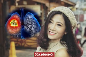 Vì sao khi phát hiện bệnh ung thư phổi thường đã ở giai đoạn muộn?