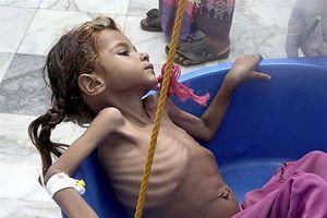 Chiến sự khốc liệt đẩy Yemen tới bờ vực thảm họa nhân đạo