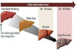 Tỷ lệ mắc ung thư gan ở Việt Nam rất cao, làm sao để biết mình nằm trong nhóm nhiều nguy cơ?