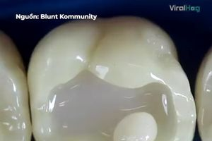 Cận cảnh quy trình phục hồi răng hư
