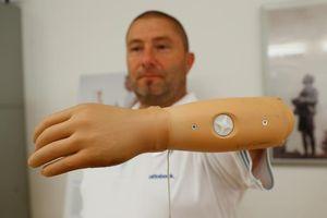 Cánh tay bionic mở ra cuộc sống tốt đẹp hơn