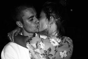 Đăng ảnh hôn Hailey Baldwin, Justin Bieber bị fan chú ý làn da đầy mụn