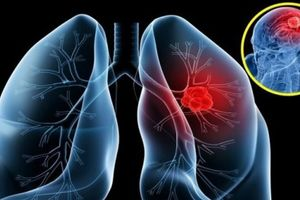 Ung thư phổi: 7 nguyên nhân gây bệnh ít người ngờ tới