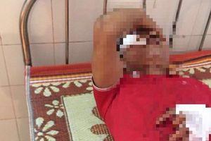 Nam Định: Xô xát trên bàn nhậu, 1 người tử vong