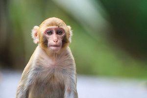 Hi hữu: Cô gái bị khỉ nuôi nhà hàng xóm cắn nát tay