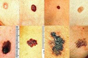 Cảnh giác với những dấu hiệu ung thư da ít ai ngờ tới