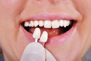 Bác sĩ nha khoa cảnh báo trào lưu gắn răng khểnh tiềm ẩn nhiều độc hại