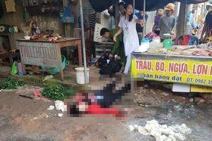 Cô gái bán đậu hủ bị bắn chém kinh hoàng giữa chợ