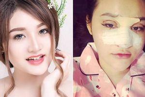 Hot girl Mì Gõ gây sự trên phố Nguyễn Huệ phẫu thuật xong giống hệt Ngân 98