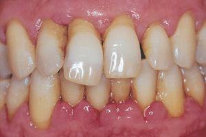 Viêm chân răng đau cỡ nào dùng 5 bài thuốc này cũng khỏi
