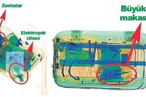 Hình ảnh đồ mổ vụ giết và phân xác Khashoggi qua máy quét X-quang