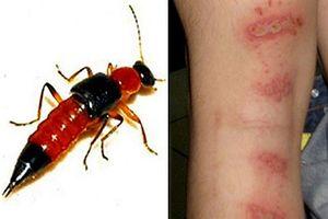 Viêm da do chất độc nguy hiểm từ kiến ba khoang, làm sao phòng chống hiệu quả?