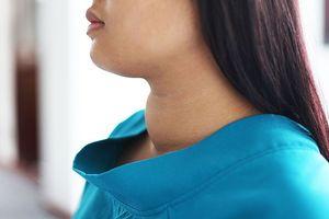 Bị bướu cổ, chuyên gia nội tiết khuyên bạn cần xác định rõ 3 điều