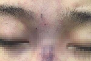 Thêm một cô gái bị mù mắt sau tiêm filler